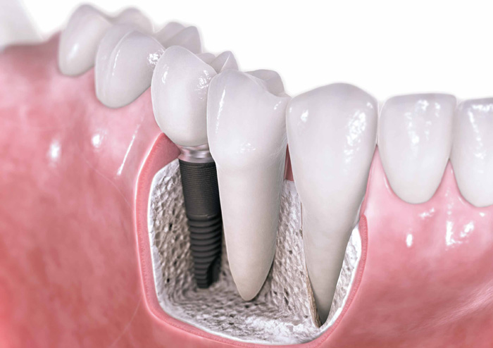 Dental Implants in Vancouver WA