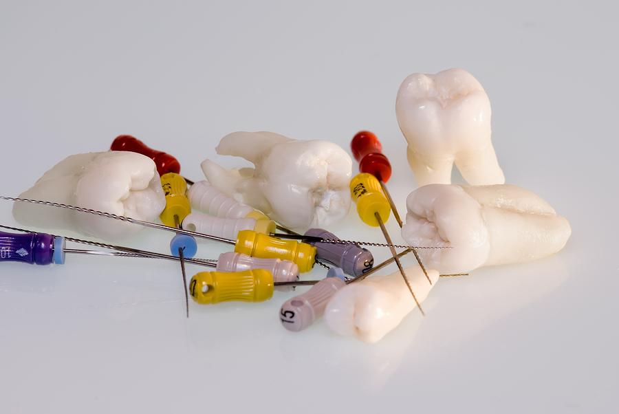 Root Canals Vancouver WA