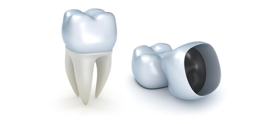 Dental Crowns in Vancouver WA