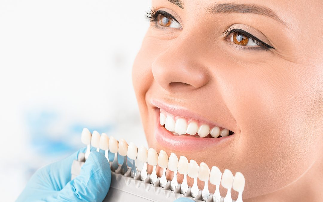 DIY Teeth Whitening Trends: Fact or Fiction?