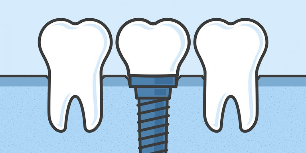 Benefits of Dental Implants in Vancouver WA