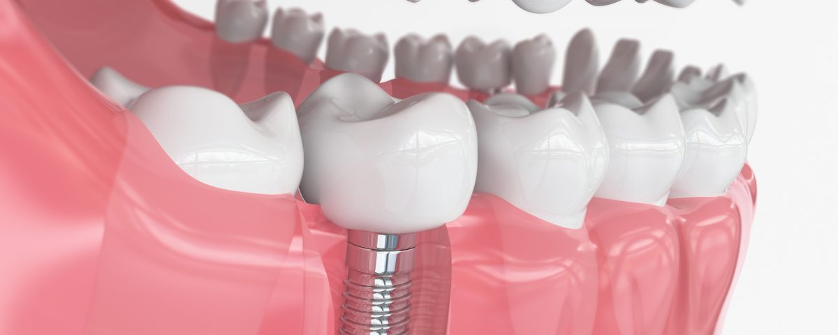 Types of Dental Implants in Vancouver WA