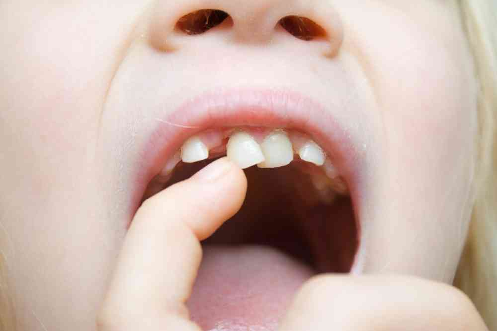 Baby Teeth Extraction in Vancouver WA
