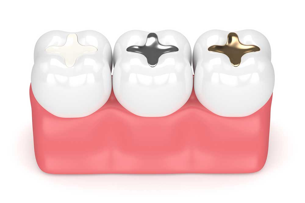 Dental Fillings for Cavities in Vancouver, WA